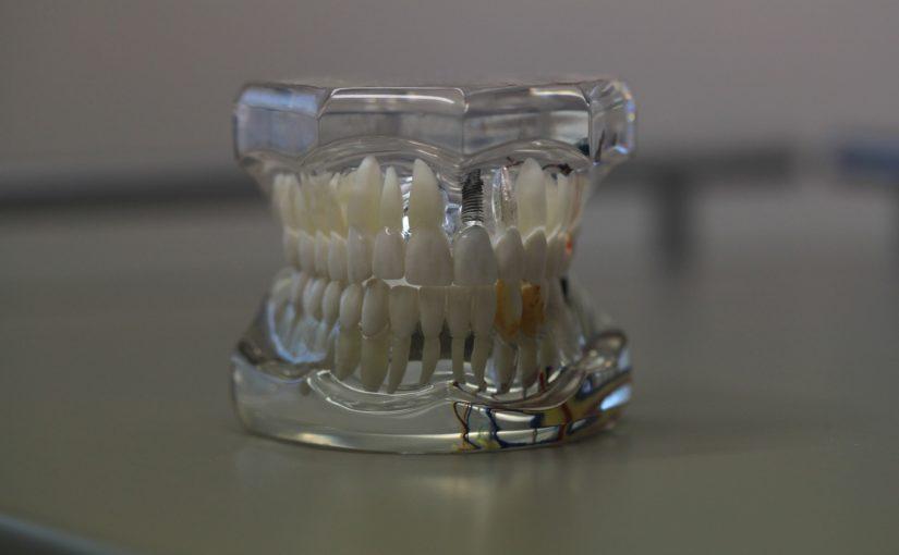 Zły sposób odżywiania się to większe ubytki w zębach a również ich brak